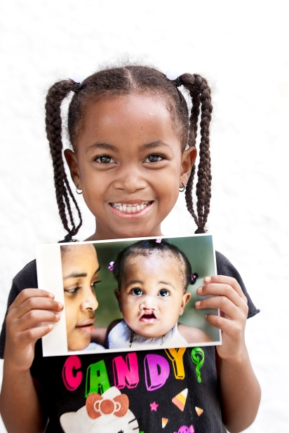 Share a Smile #ctmh #closetomyheart #shareasmile #operationsmile #charity #nonprofit
